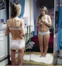 Psicologo en Concepcion - Anorexia